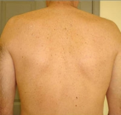 Laser Hair Removal Gallery - Patient 5930206 - Image 2