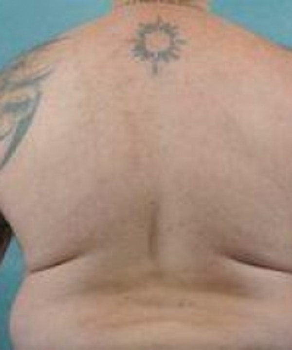 Laser Hair Removal Gallery - Patient 5930209 - Image 4