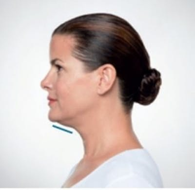 Non-Invasive Fat Removal Gallery - Patient 5930214 - Image 3