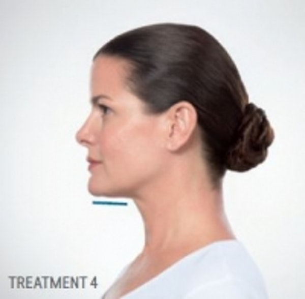 Non-Invasive Fat Removal Gallery - Patient 5930214 - Image 2