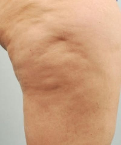 Cellulite Treatments Gallery - Patient 5930218 - Image 1