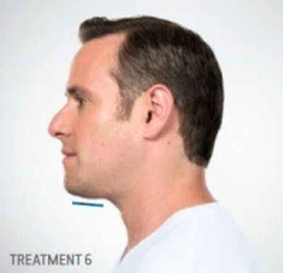 Non-Invasive Fat Removal Gallery - Patient 5930217 - Image 2