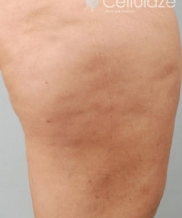 Cellulite Treatments Gallery - Patient 5930218 - Image 2