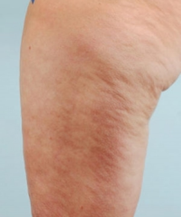 Cellulite Treatments Gallery - Patient 5930224 - Image 1