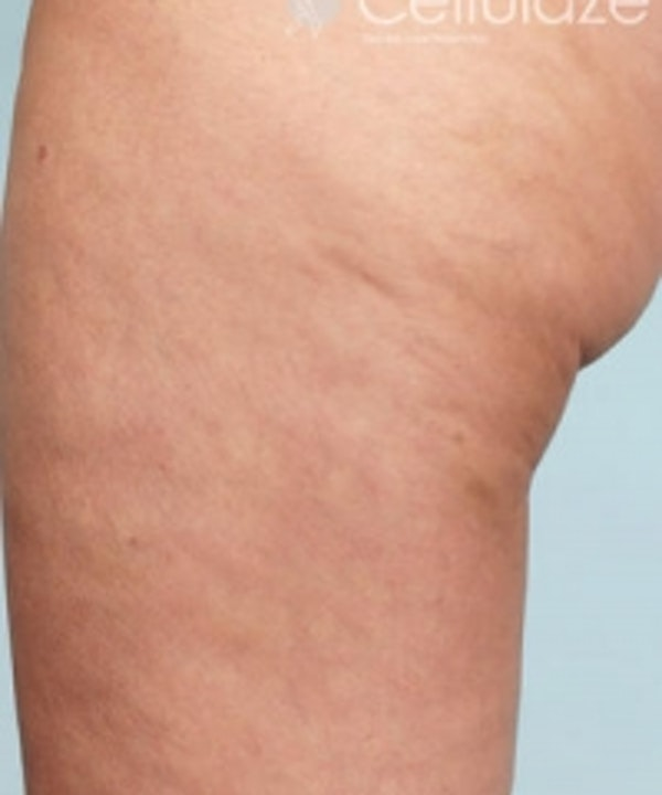 Cellulite Treatments Gallery - Patient 5930224 - Image 2