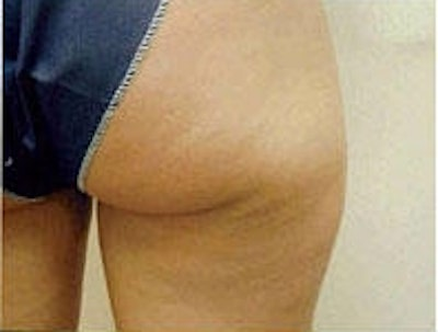 Cellulite Treatments Gallery - Patient 5930231 - Image 1