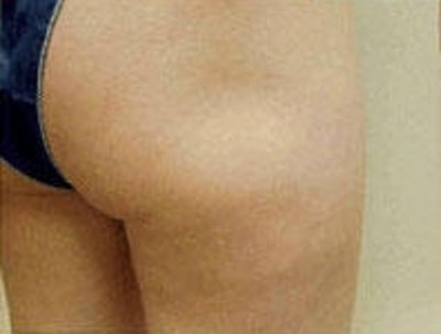 Cellulite Treatments Gallery - Patient 5930231 - Image 2