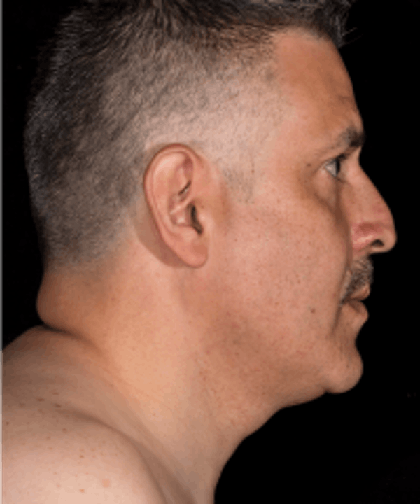 Non-Invasive Fat Removal Gallery - Patient 5930227 - Image 2