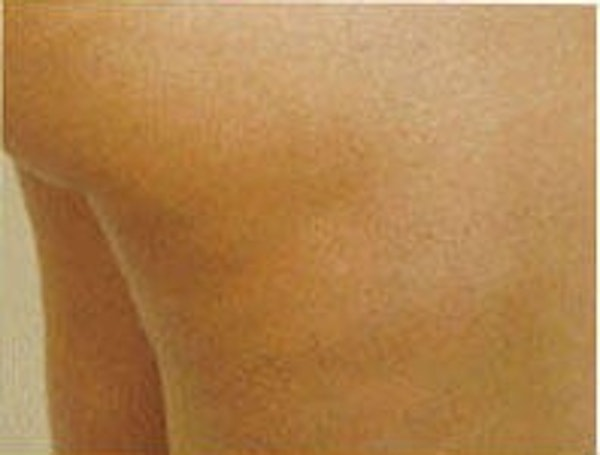 Cellulite Treatments Gallery - Patient 5930231 - Image 3