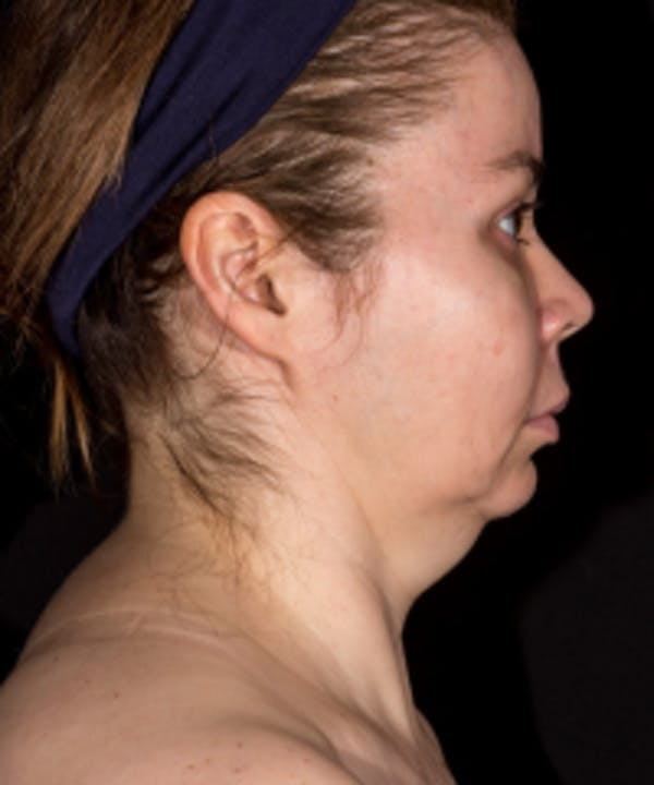 Non-Invasive Fat Removal Gallery - Patient 5930234 - Image 1