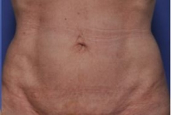 Skin Tightening Gallery - Patient 5930232 - Image 2