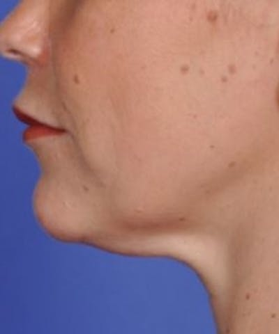 Skin Tightening Gallery - Patient 5930237 - Image 1