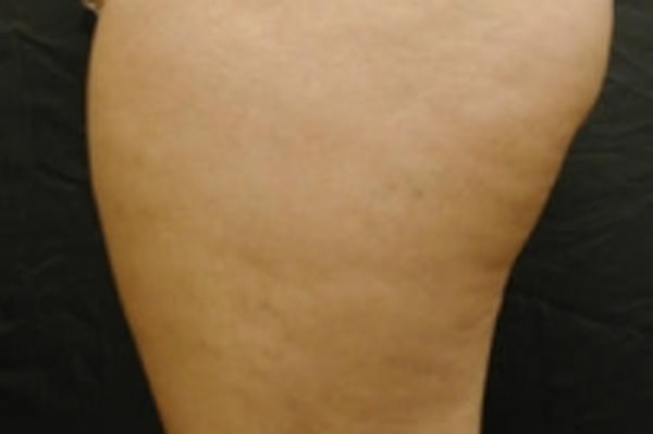 Cellulite Treatments Gallery - Patient 5930235 - Image 2