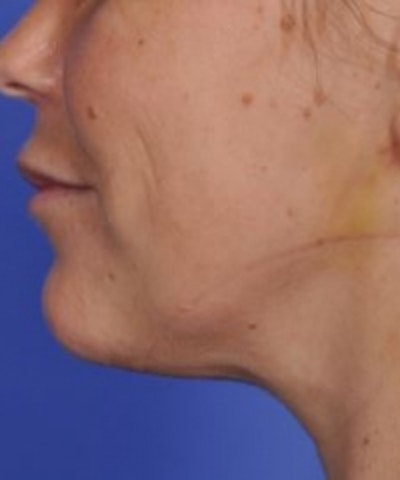 Skin Tightening Gallery - Patient 5930237 - Image 2