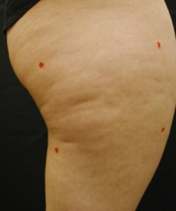 Cellulite Treatments Gallery - Patient 5930240 - Image 1