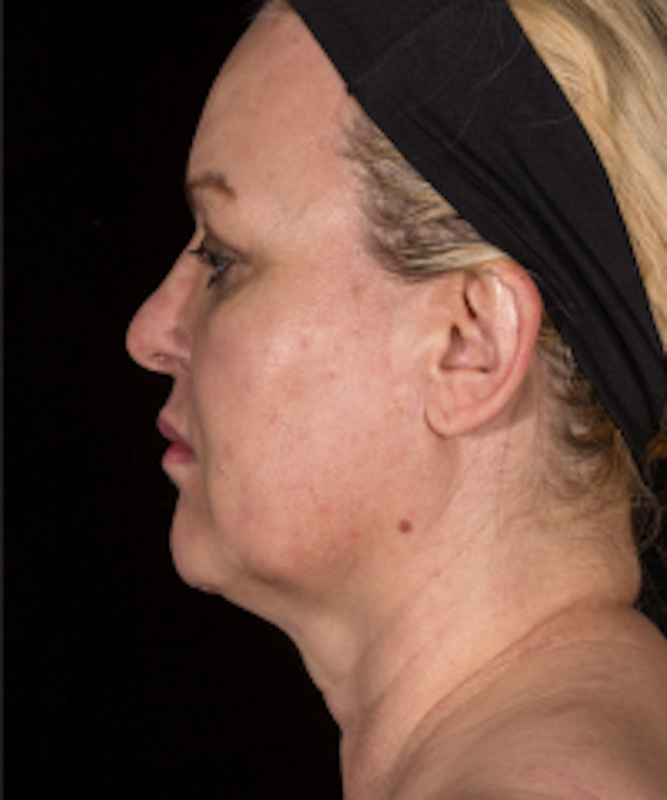 Non-Invasive Fat Removal Gallery - Patient 5930238 - Image 2