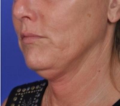 Skin Tightening Gallery - Patient 5930241 - Image 1