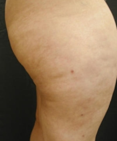 Cellulite Treatments Gallery - Patient 5930240 - Image 2