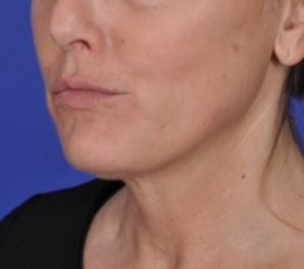 Skin Tightening Gallery - Patient 5930241 - Image 2