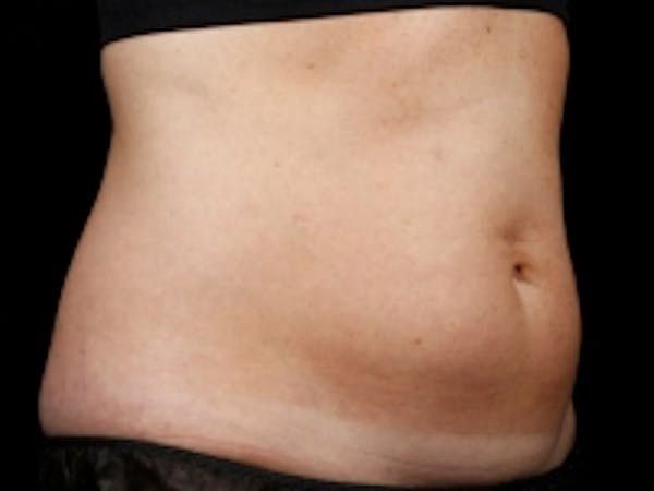 Non-Invasive Fat Removal Gallery - Patient 5930243 - Image 1