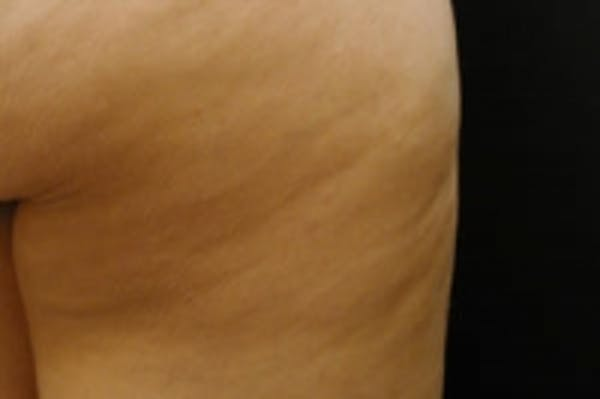 Cellulite Treatments Gallery - Patient 5930242 - Image 1