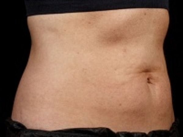 Non-Invasive Fat Removal Gallery - Patient 5930243 - Image 2