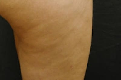 Cellulite Treatments Gallery - Patient 5930242 - Image 2