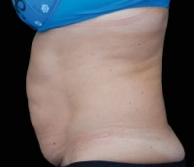 Non-Invasive Fat Removal Gallery - Patient 5930249 - Image 1