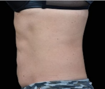 Non-Invasive Fat Removal Gallery - Patient 5930249 - Image 2
