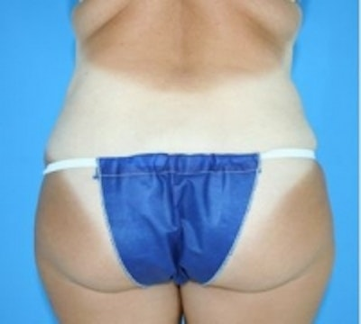 Skin Tightening Gallery - Patient 5930251 - Image 2