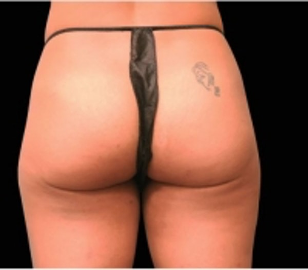 Non-Invasive Fat Removal Gallery - Patient 5930252 - Image 1