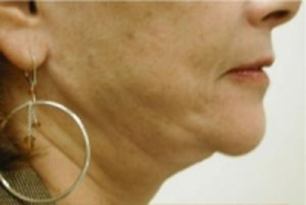 Liposuction Gallery - Patient 5930253 - Image 1