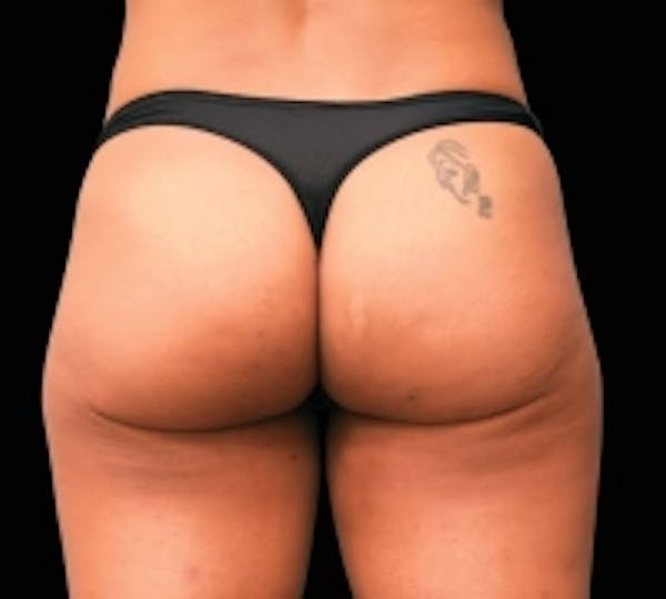 Non-Invasive Fat Removal Gallery - Patient 5930252 - Image 2