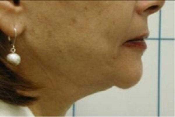 Liposuction Gallery - Patient 5930253 - Image 2