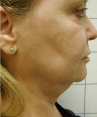 Liposuction Gallery - Patient 5930255 - Image 1