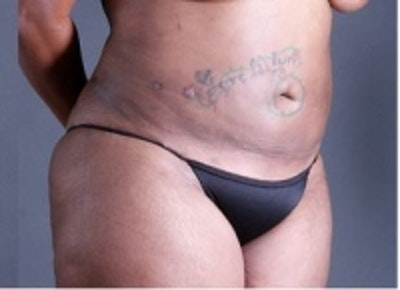 Skin Tightening Gallery - Patient 5930256 - Image 2