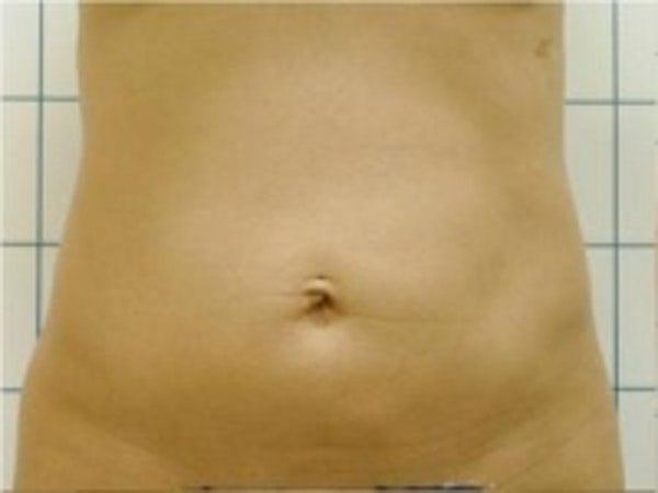 Liposuction Gallery - Patient 5930260 - Image 1