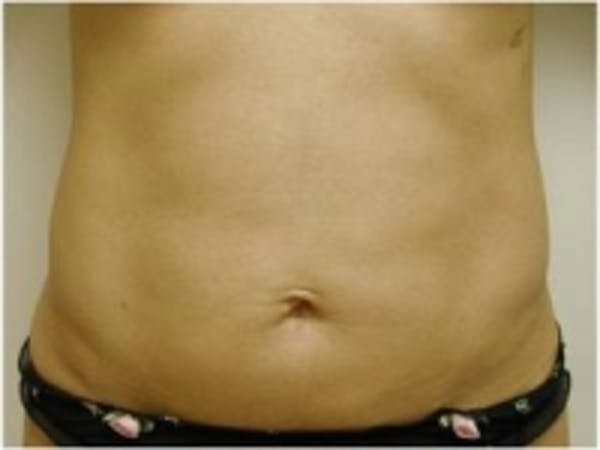 Liposuction Gallery - Patient 5930260 - Image 2