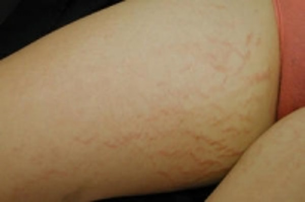 Stretch Marks Gallery - Patient 5930266 - Image 1