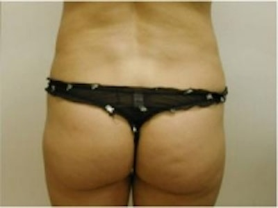 Liposuction Gallery - Patient 5930260 - Image 4