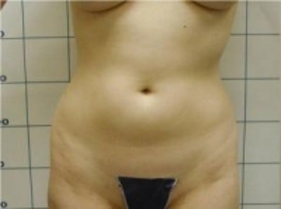 Liposuction Gallery - Patient 5930264 - Image 1