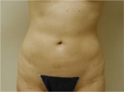 Liposuction Gallery - Patient 5930264 - Image 2