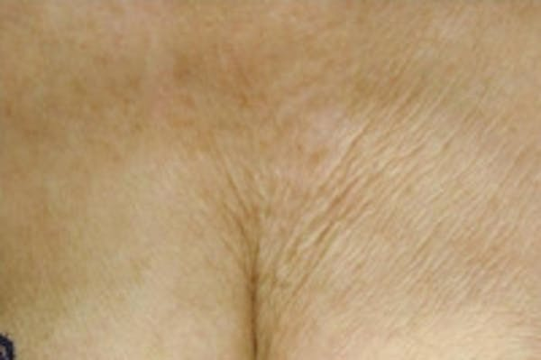 Laser Chest Rejuvenation Gallery - Patient 5930265 - Image 1