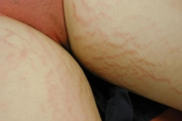 Stretch Marks Gallery - Patient 5930266 - Image 5