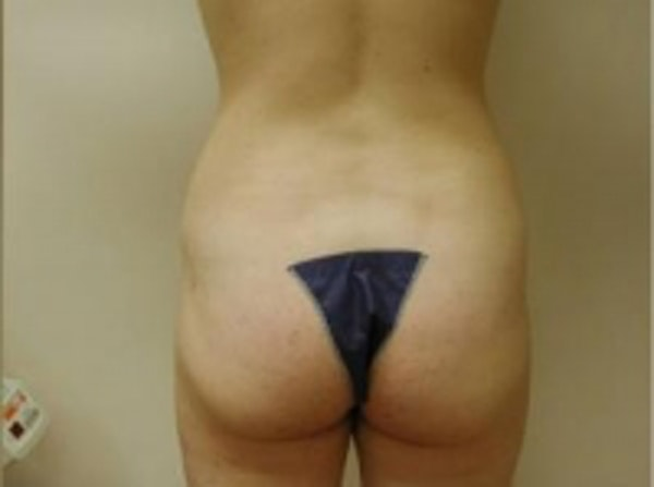 Liposuction Gallery - Patient 5930264 - Image 4