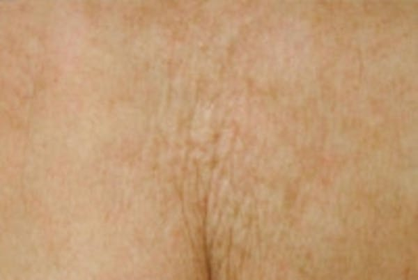Laser Chest Rejuvenation Gallery - Patient 5930265 - Image 2