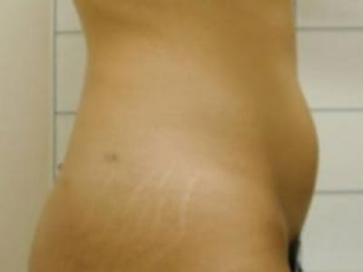 Liposuction Gallery - Patient 5930271 - Image 6