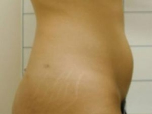 Liposuction Gallery - Patient 5930271 - Image 1