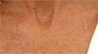 Laser Chest Rejuvenation Gallery - Patient 5930268 - Image 2