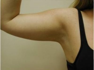 Liposuction Gallery - Patient 5930272 - Image 2